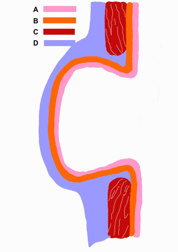 Schematic picture of the diverticulum